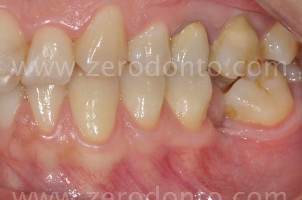3. occlusione sx