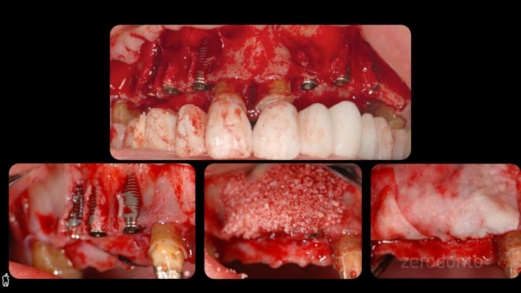 dr. Barabanti - zerodonto.010