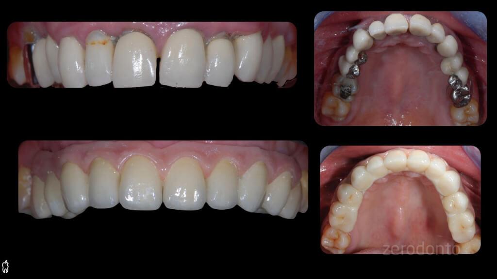 dr. Barabanti - zerodonto.017