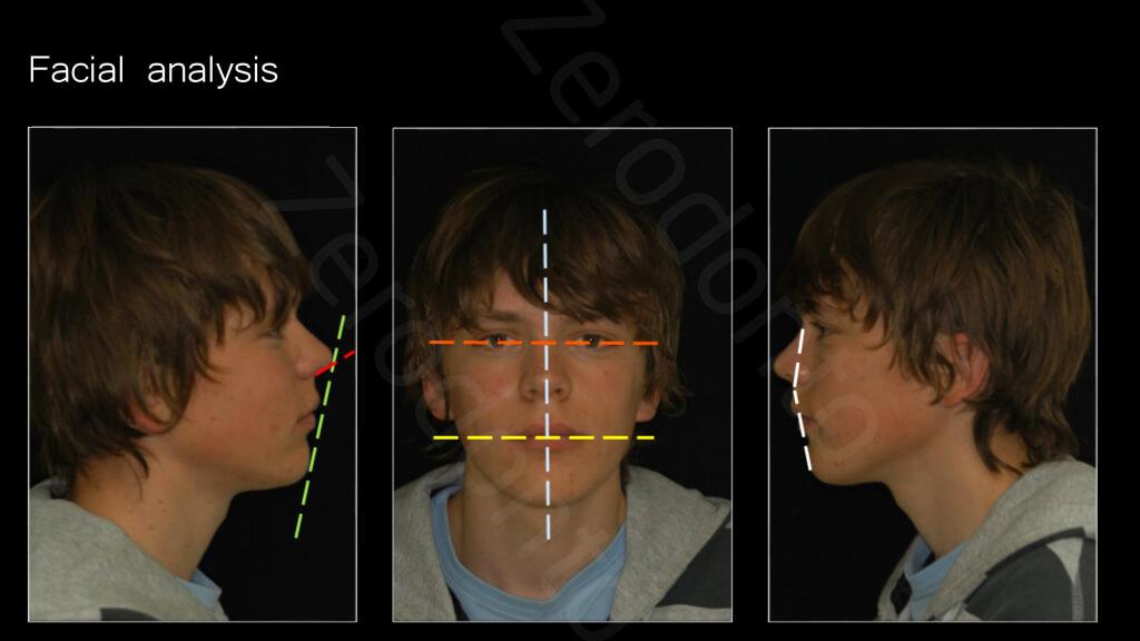 006_facial_analysis