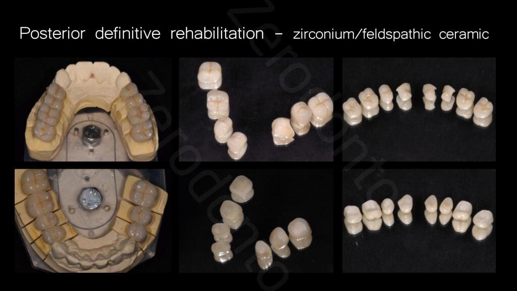 014_posterior_definitive rehabilitation