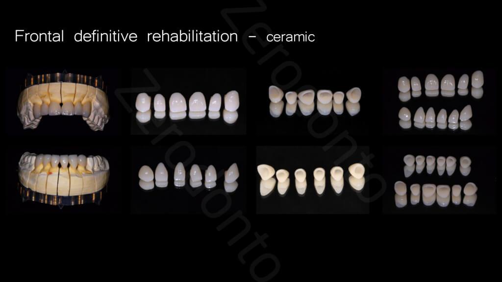 015_Frontal_definitive_rehabilitation
