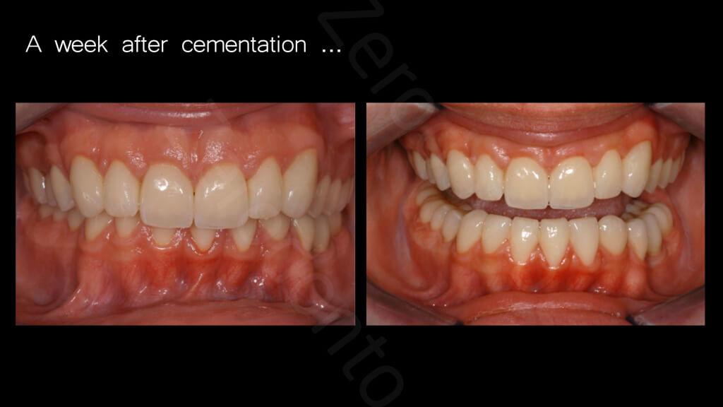 018_A_week_afte_cementation