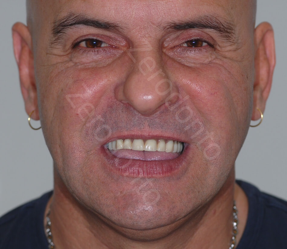 Dr Costantino Vignato Full Upper And Lower Jaw Milled