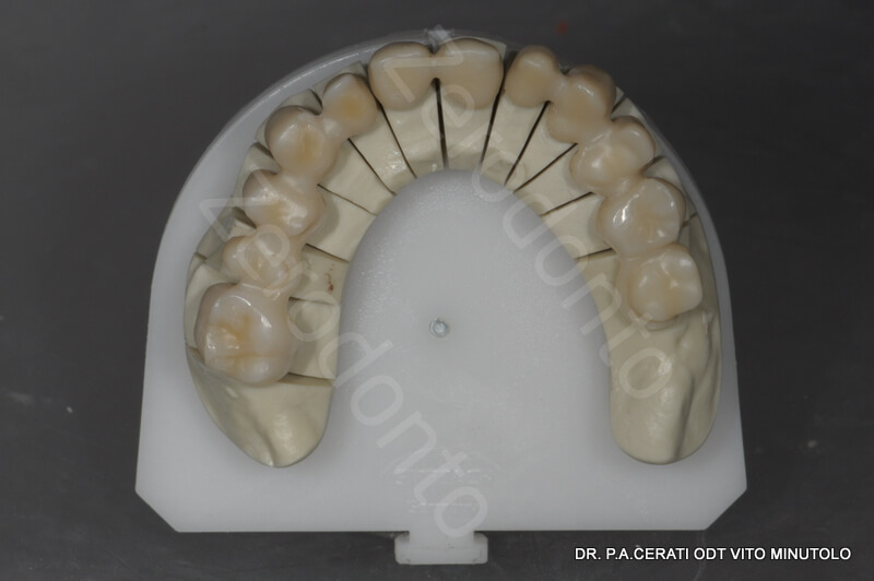 10 - zirconia structure milled and sintered 2
