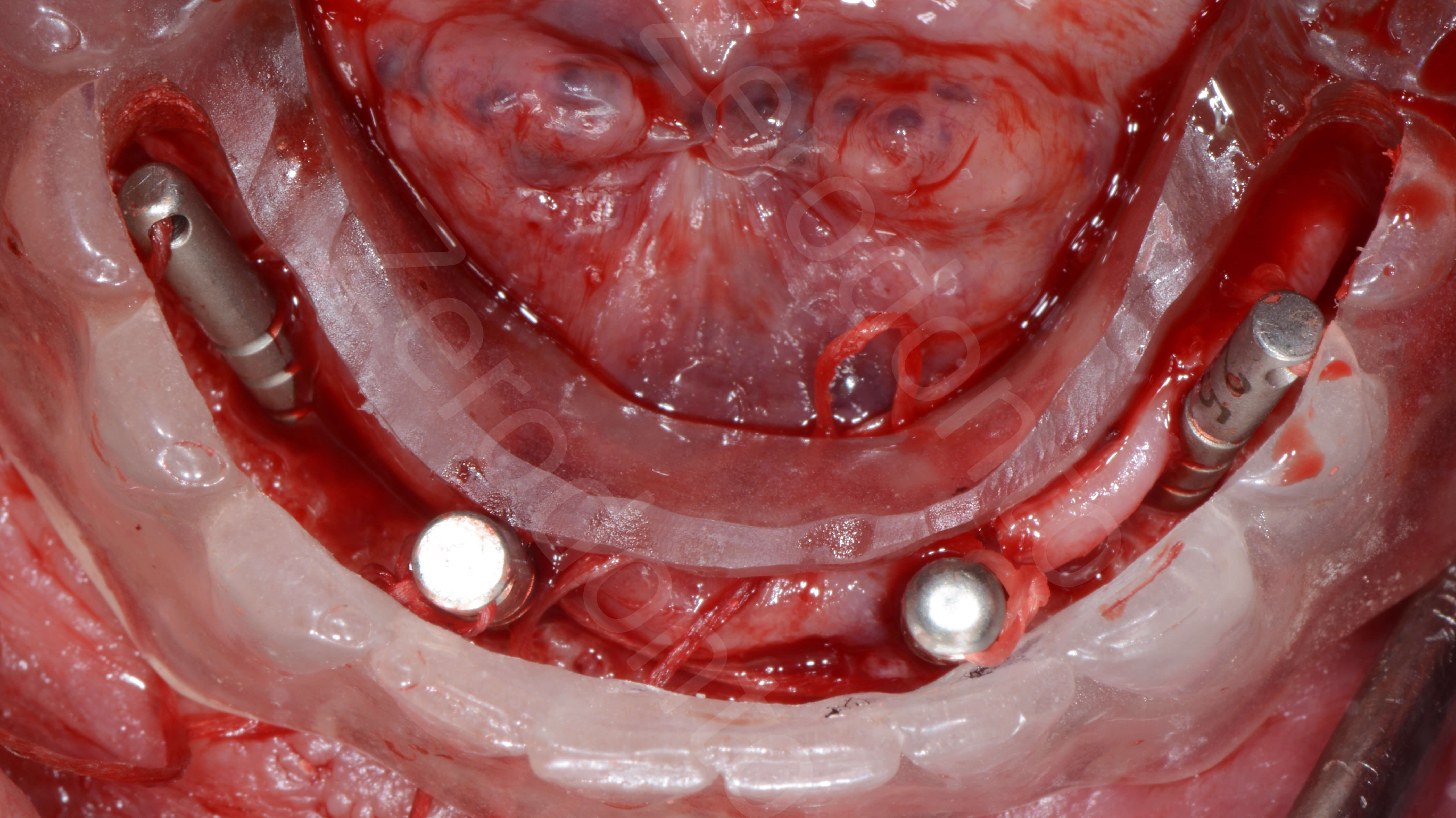 Dr Kan Wongkamhaeng Full Mouth Rehabilitation Of An Edentulous Jaw Wiring Surgery 4 Mandibular