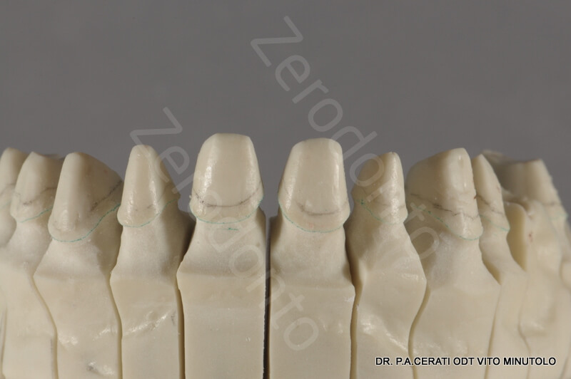 7-trimming remove the gingival portion