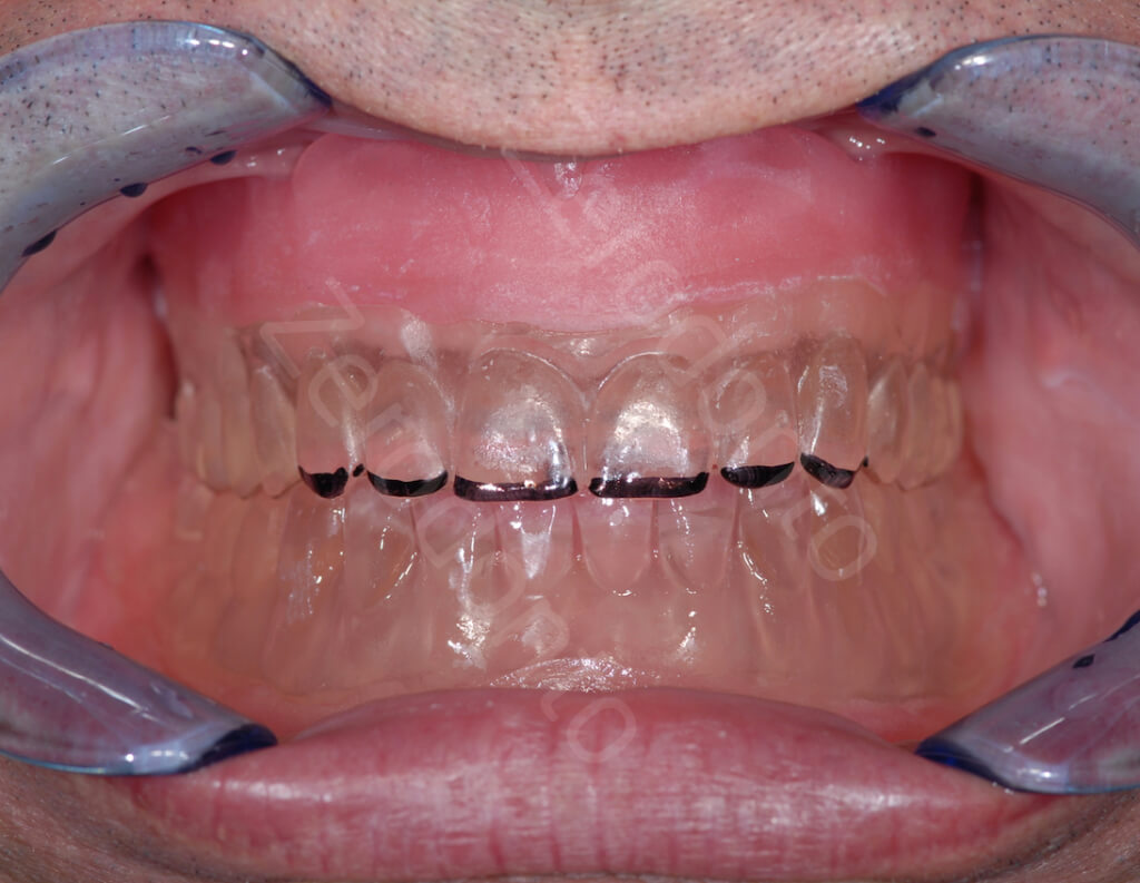 9 REMOVABLE PROSTHESIS FOR SURGERY AND OCCLUSION AFTER SURGERY