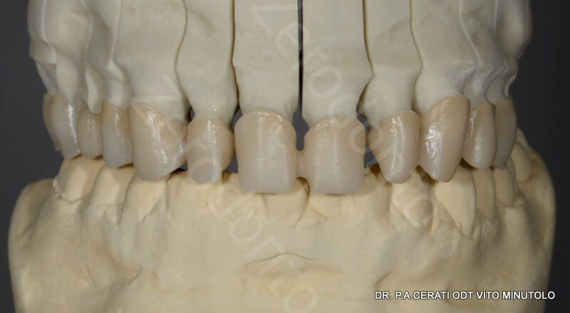 9 - zirconia structure milled and sintered 1