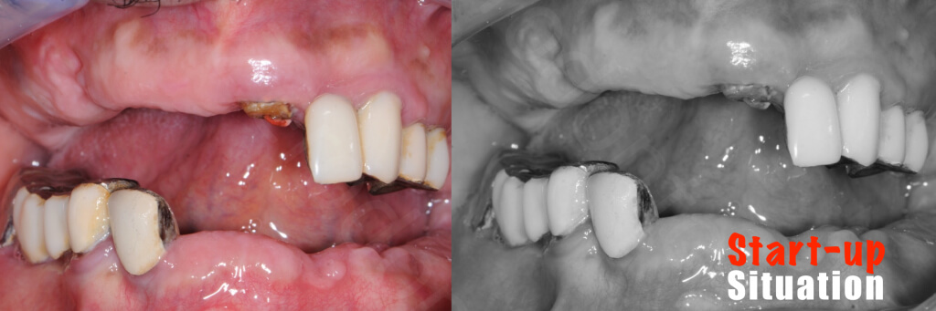 Implant retained Overdentures.001