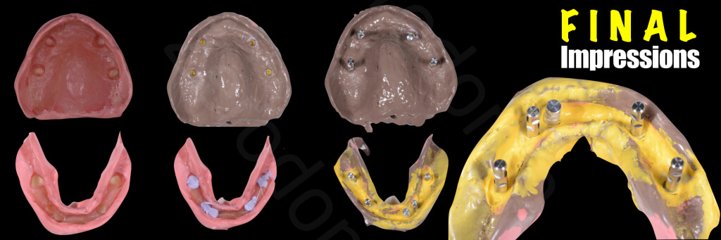 Implant retained Overdentures.019