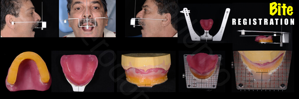 Implant retained Overdentures.020