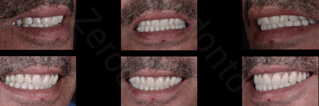 Implant retained Overdentures.031