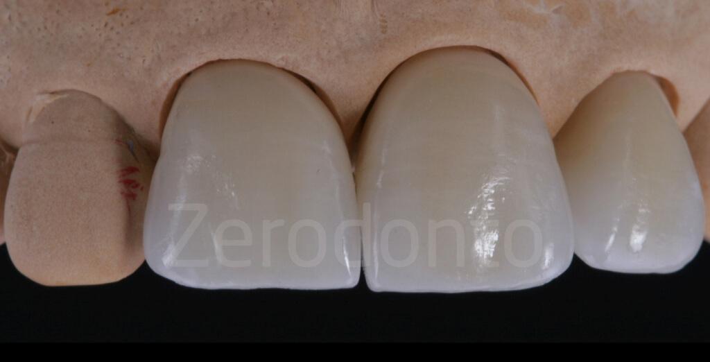 ZERODONTO AUREA 40 .011
