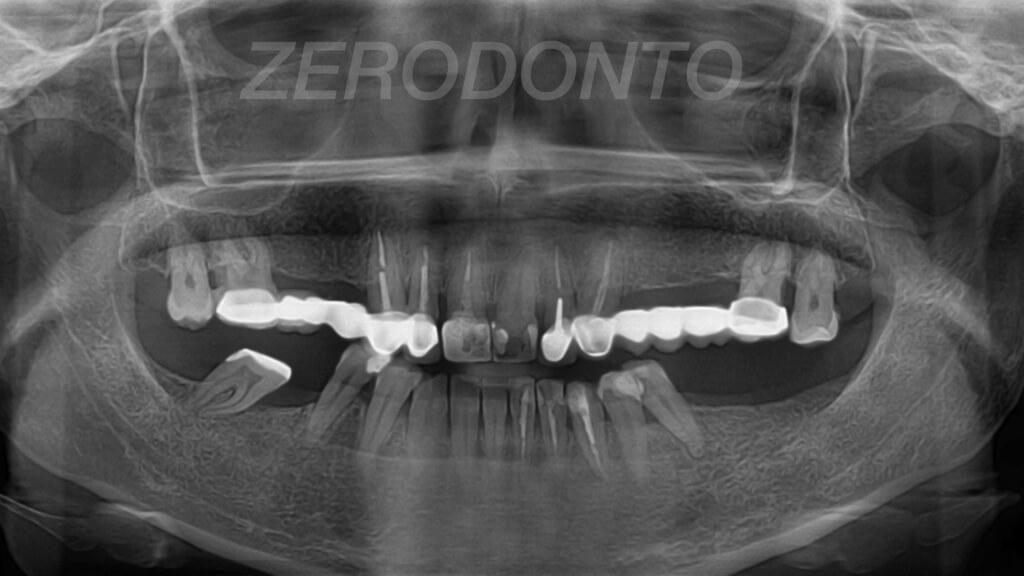ZERODONTO.003
