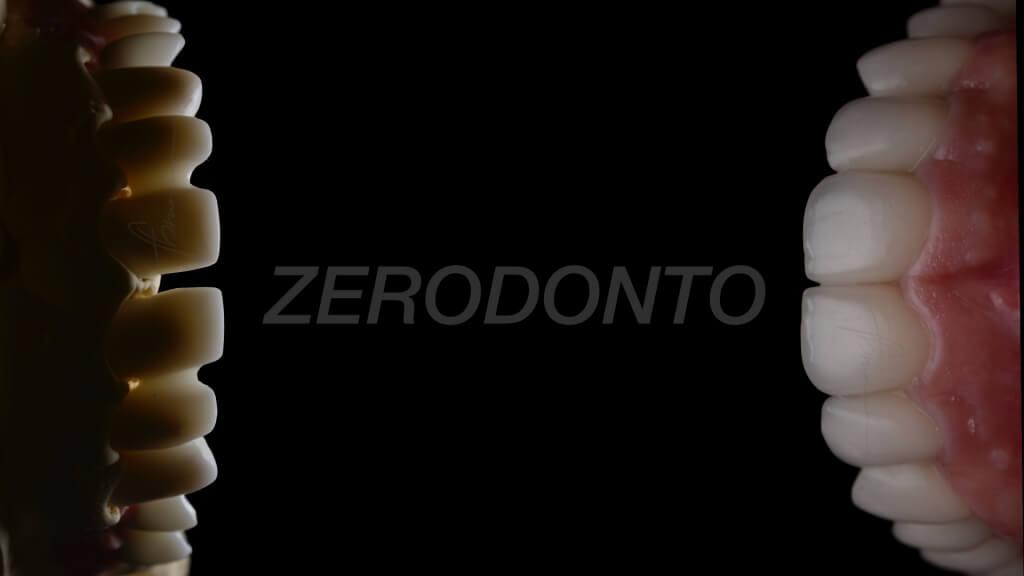 ZERODONTO.025