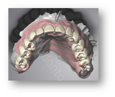 matching teeth design and base plate design