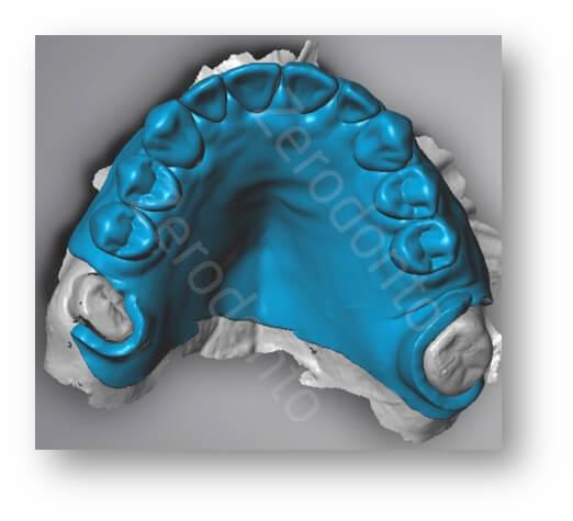 transition denture design