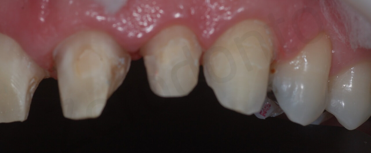 teeth preparation (detail left side intra-oral with black contrast)