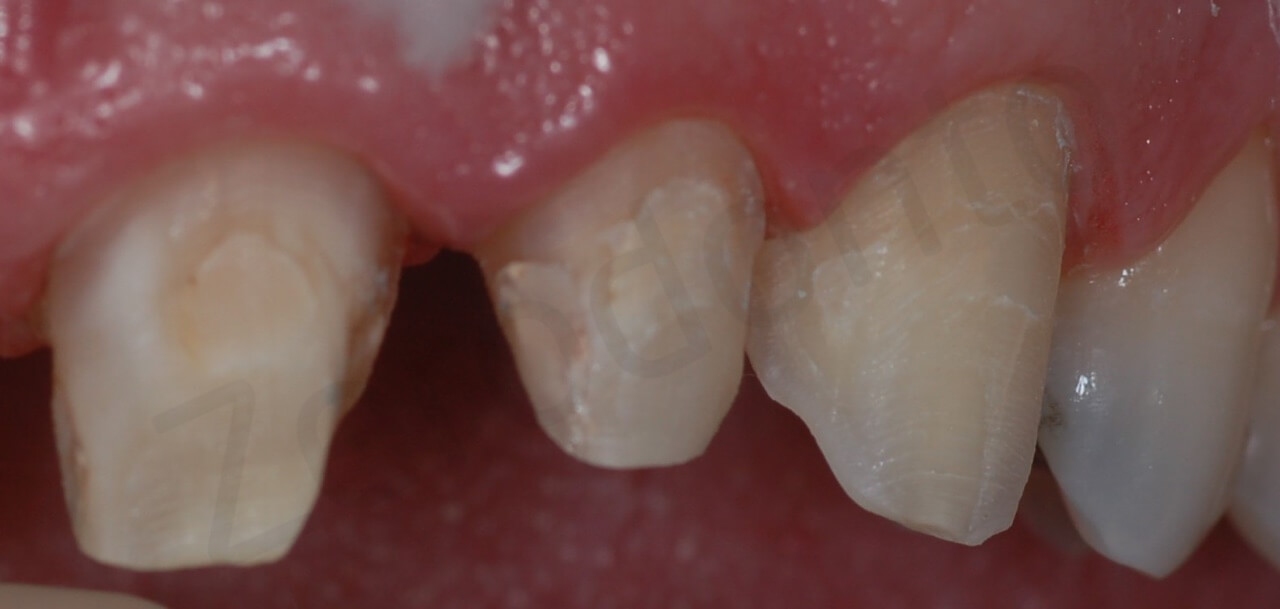 teeth preparation (detail right side intra-oral)