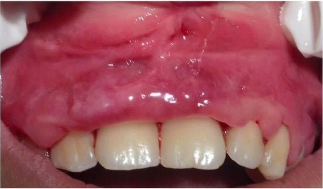 before double gingiva