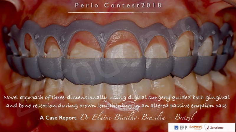 Surgical procedure by Elaine Bicalho Surgical Planning 2D and 3D by Instructors DSD Emerson Finholdt Felipe Miguel Saliba II Rafael De Liz Pocztaruk DSD - Digital Smile Design by Christian Coachman