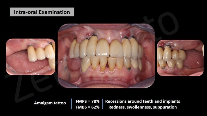 Fig1. Initial examination. Multiple recessions around teeth and implants, signs of inflammation around the implants – including redness, swollenness and suppuration. Fistula apical to the implant in position of tooth 13.