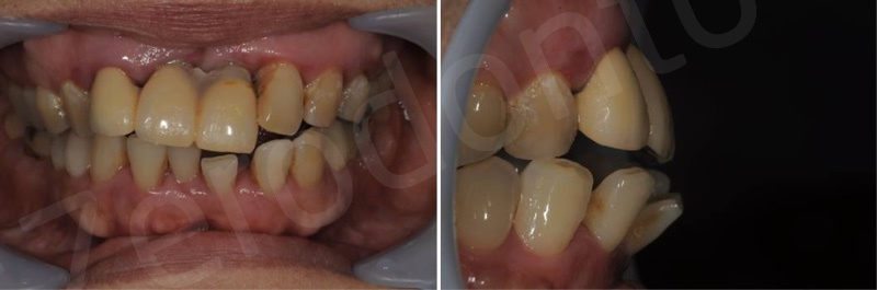 Fig.1 A generally healthy, non-smoking, 63-year-old woman visited our clinic with a complaint about upper front teeth mobility. Both the mandibular and maxilla anterior teeth were flaring-out without anterior guidance.