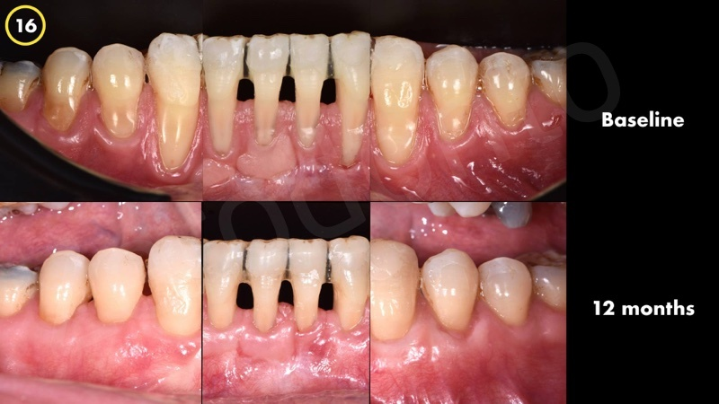 Baseline and 12months follow up resulted in similar outcomes both on CTG and AMD applied sites. The outcome was satisfactory both for the surgeon and the patient.