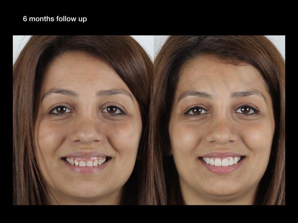 Gummy Smile Treatment | Recep Uzgur | Prosthocontest2019
