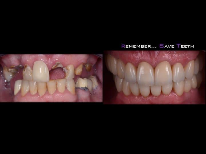107 Manuel Alejandro Martín toledo save teeth or not