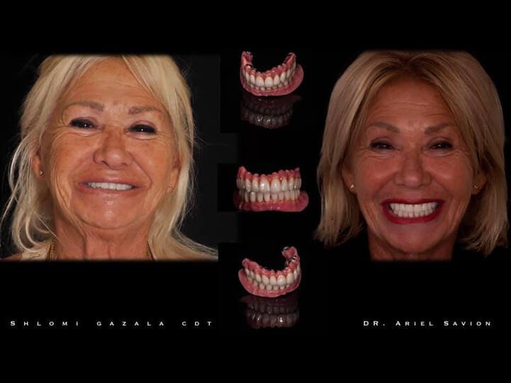75 Ariel Savion Flul Mouth Rehabilitation Ariel Savion